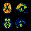 PET scans representing individuals with high and low amyloid burden.