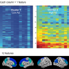 Cluster analysis representing individuals with low and high amyloid burden.
