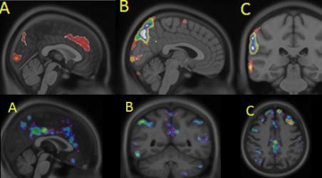 Stop-AD Brain scan